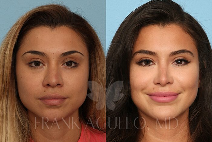 Rhinoplasty Before and After 13
