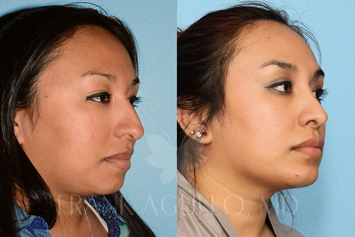 Rhinoplasty Before and After 14