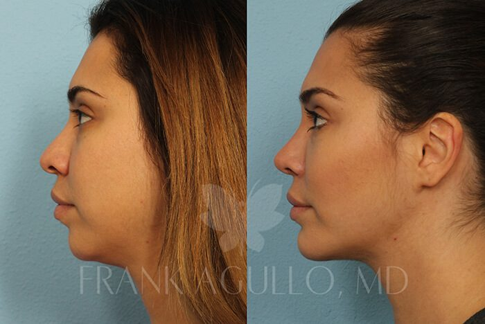 Rhinoplasty Before and After 16