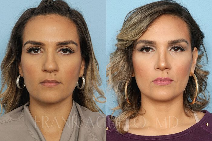 Rhinoplasty Before and After 17