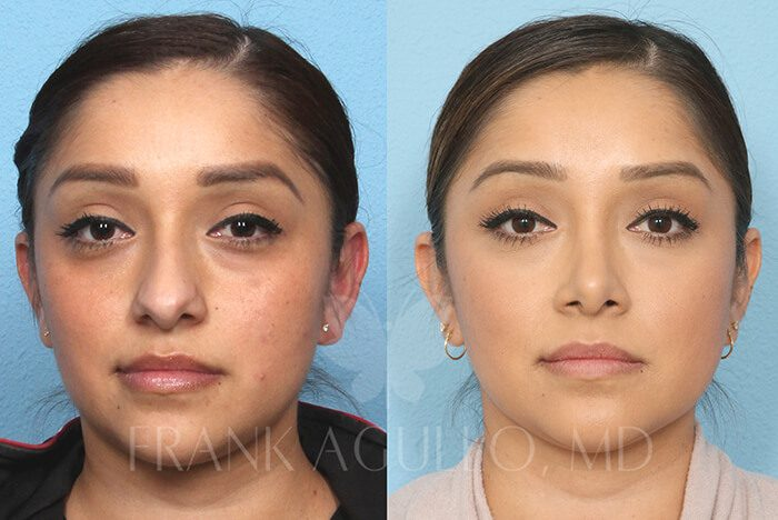Rhinoplasty Before and After 18