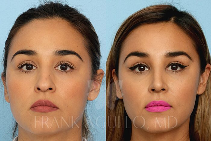 Rhinoplasty Before and After 19