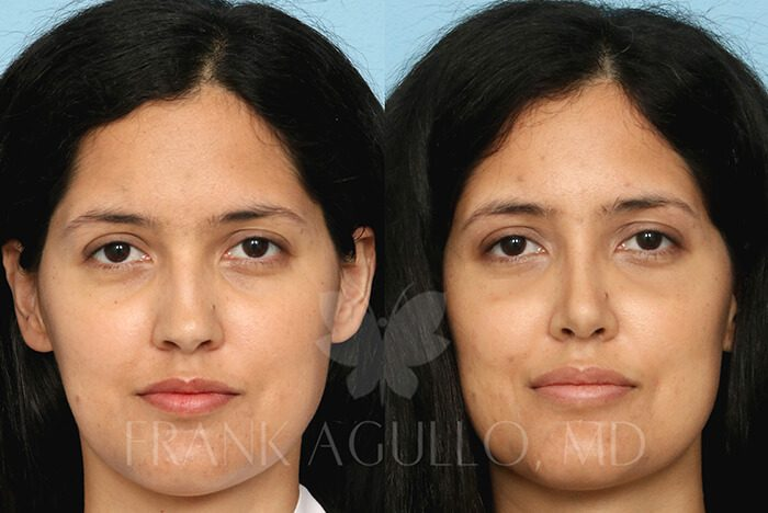 Rhinoplasty Before and After 20