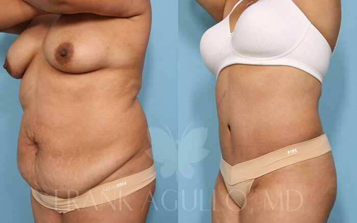 Tummy Tuck Before and After 5