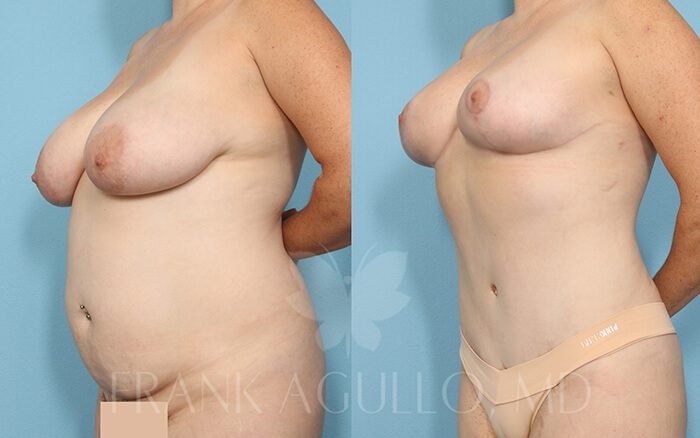 Tummy Tuck Before and After 9
