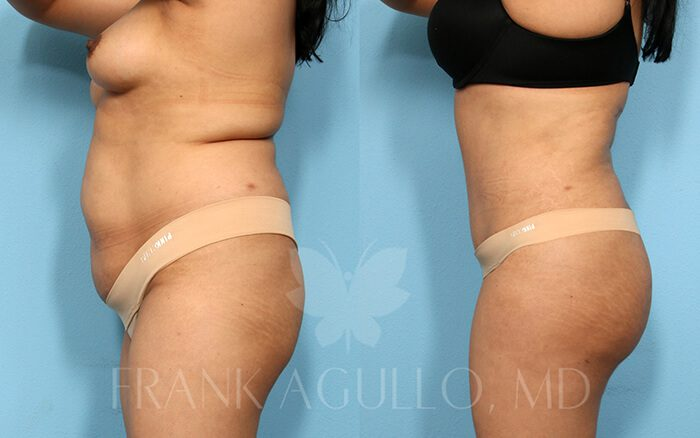 Tummy Tuck Before and After 12