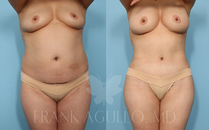 Tummy Tuck Before and After 14