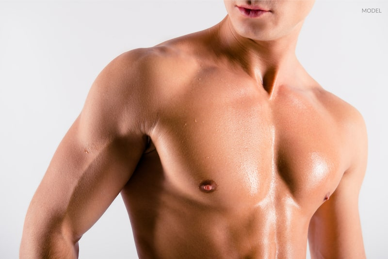 Why Are More Men Getting Pectoral Implants?