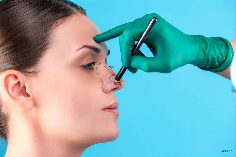 What Makes Rhinoplasty So Complex?