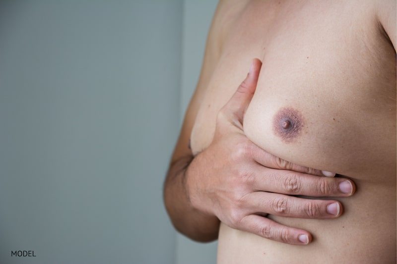 What Is Gynecomastia and How Is It Fixed?