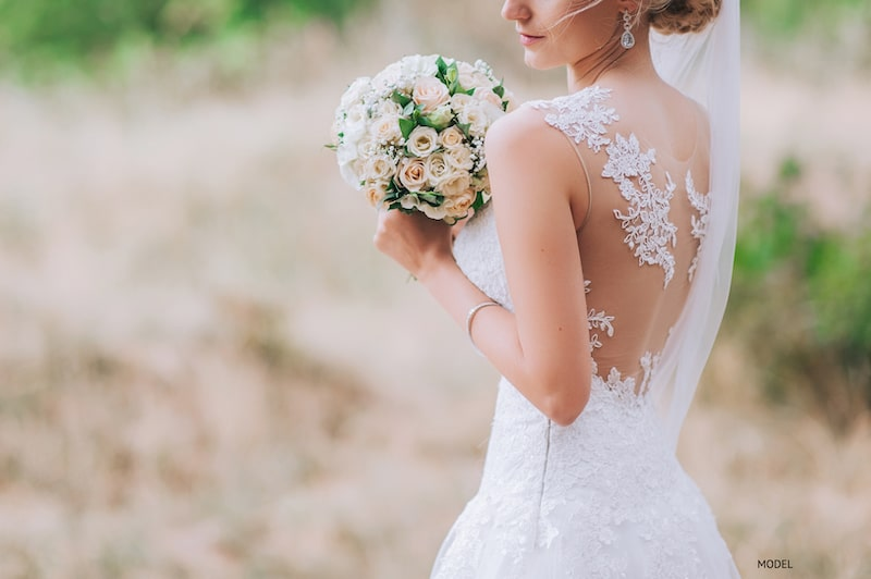 Want to Go Sleeveless for Your Wedding? Learn How an Arm Lift or BodyTite® Can Help