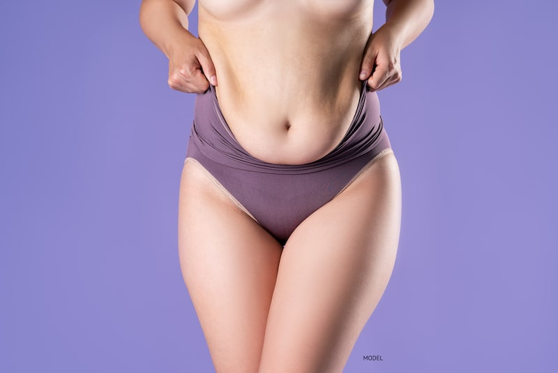 Since You Are Already Considering a Tummy Tuck, Why Not Consider a Mommy Makeover?