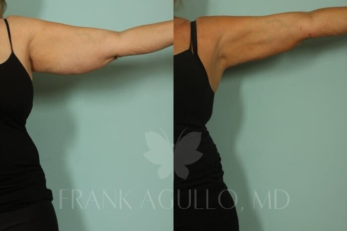 Arm Lift Before and After 2