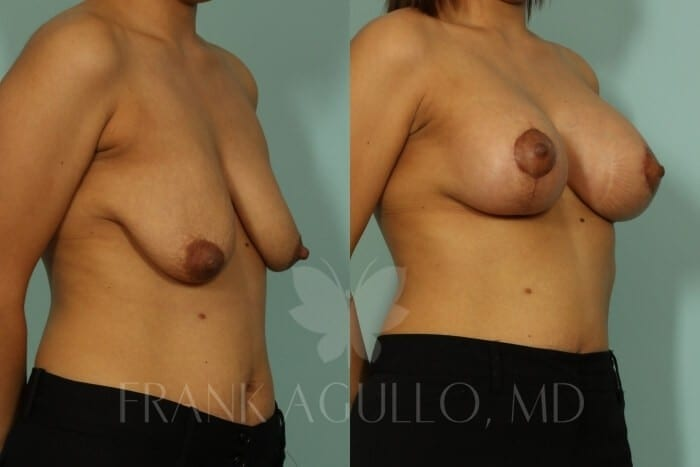 Breast Lift Before and After 12