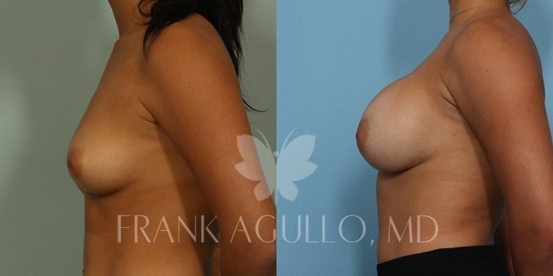 Breast Augmentation Before and After 6