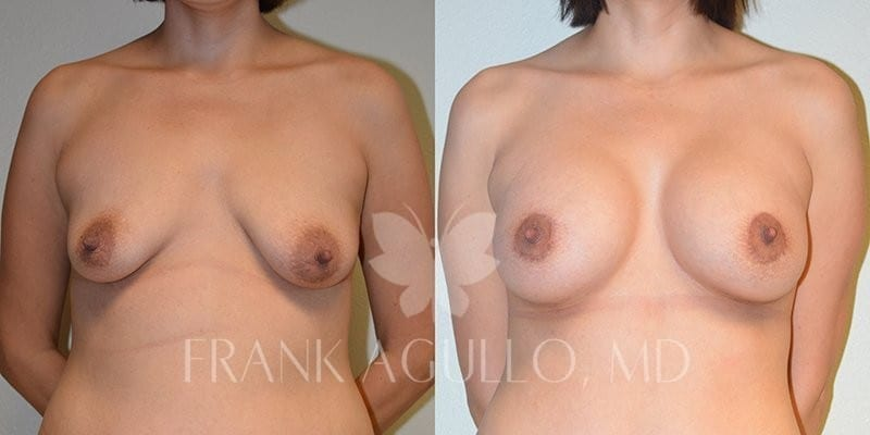 Breast Augmentation Before and After 7