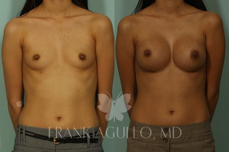Breast Augmentation Before and After 9