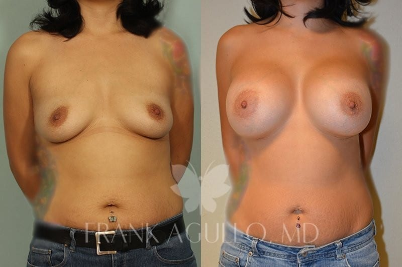 Breast Augmentation Before and After 13