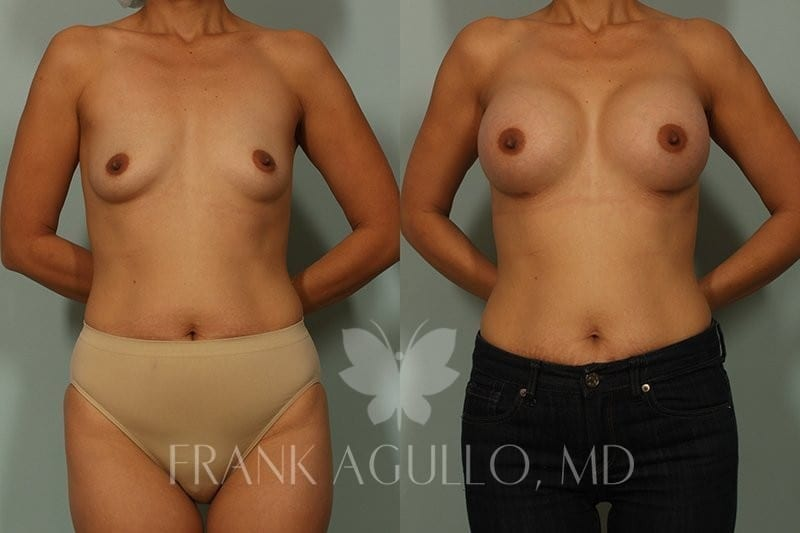 Breast Augmentation Before and After 14