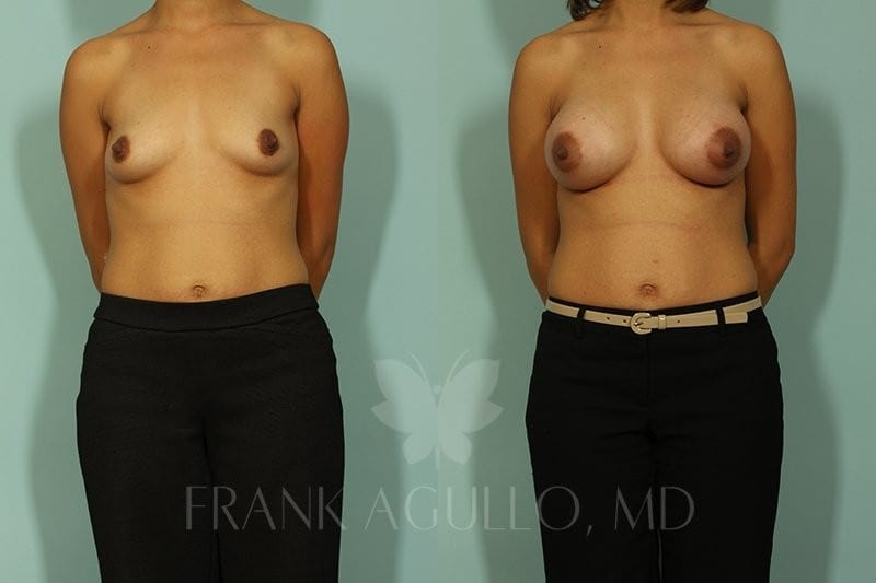 Breast Augmentation Before and After 15