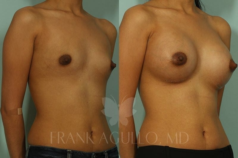 Breast Augmentation Before and After 16