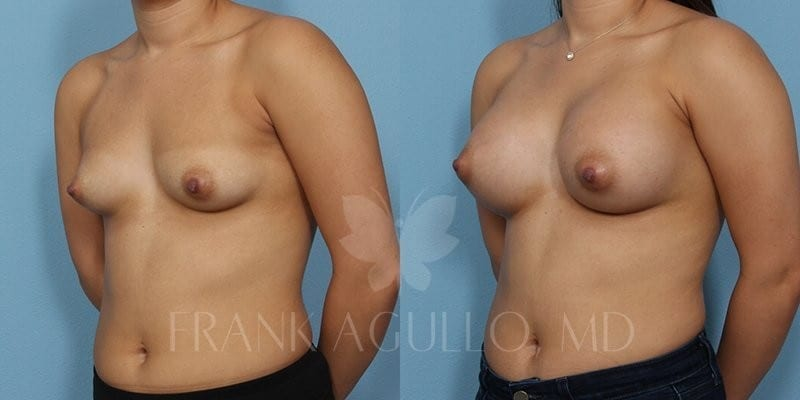 Breast Augmentation Before and After 17
