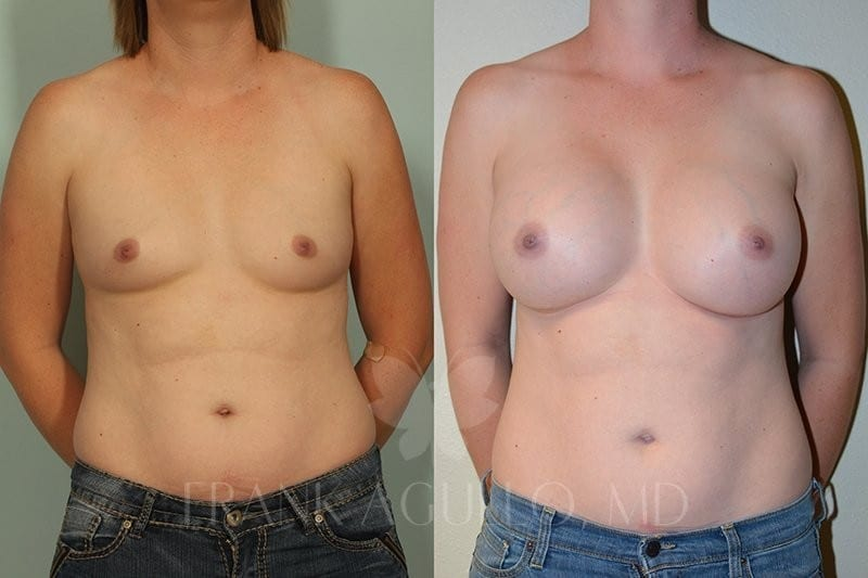 Breast Augmentation Before and After 18