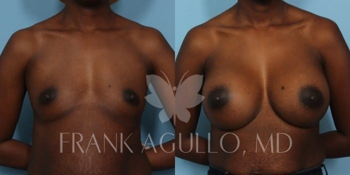 Breast Augmentation Before and After 19