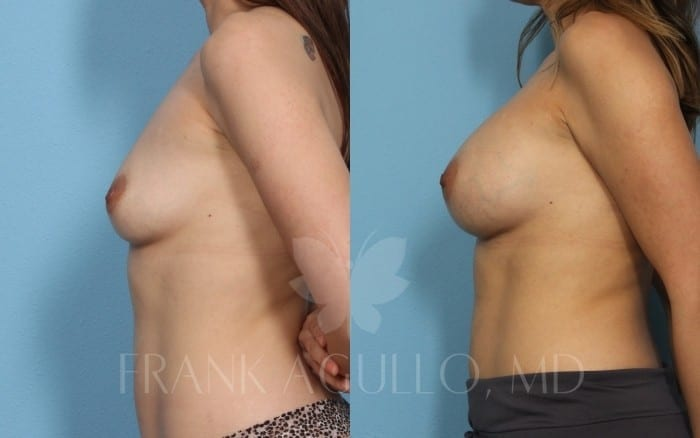 Breast Augmentation Before and After 20