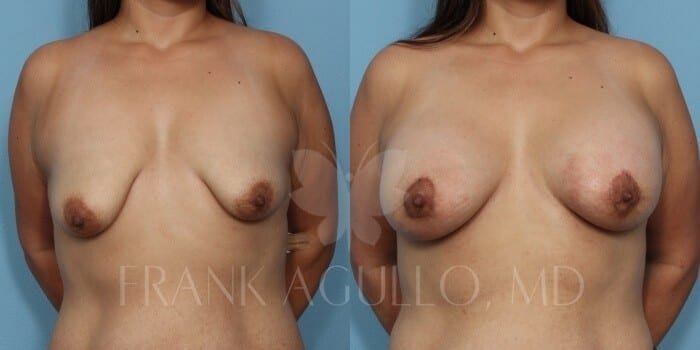 Breast Lift Before and After 15