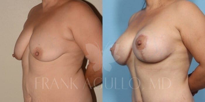 Breast Lift Before and After 16