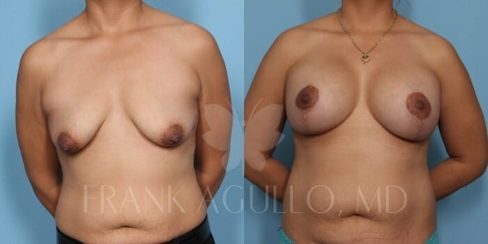 Breast Lift Before and After 17