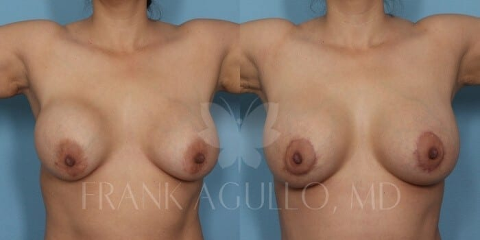 Breast Lift Before and After 18