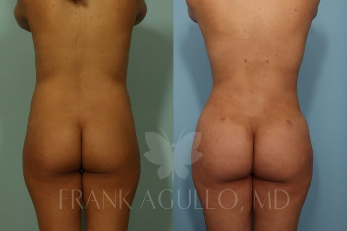 Butt Implants Before and After 1