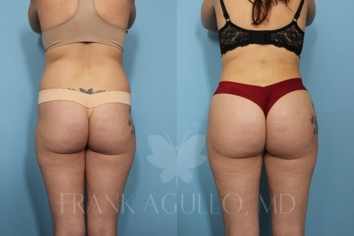 Brazilian Butt Lift Before and After 3