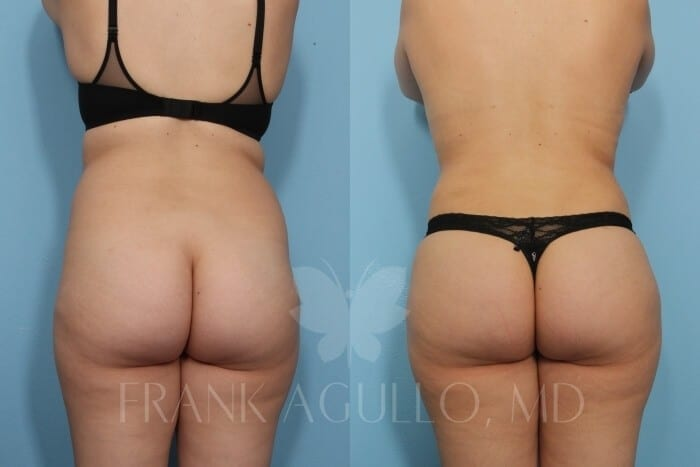 Brazilian Butt Lift Before and After 4