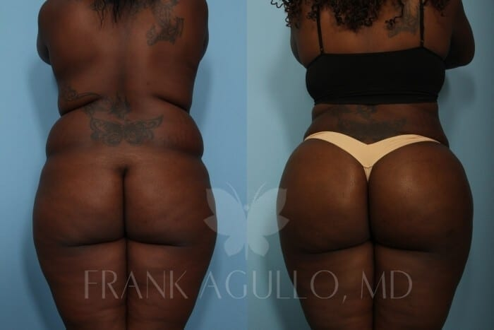 Brazilian Butt Lift Before and After 5