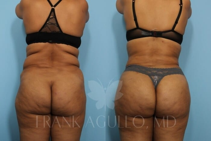 Brazilian Butt Lift Before and After 6
