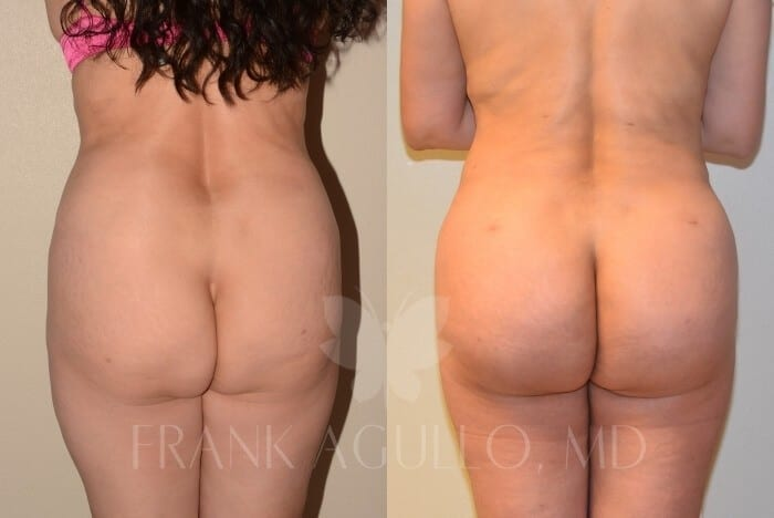 Brazilian Butt Lift Before and After 1