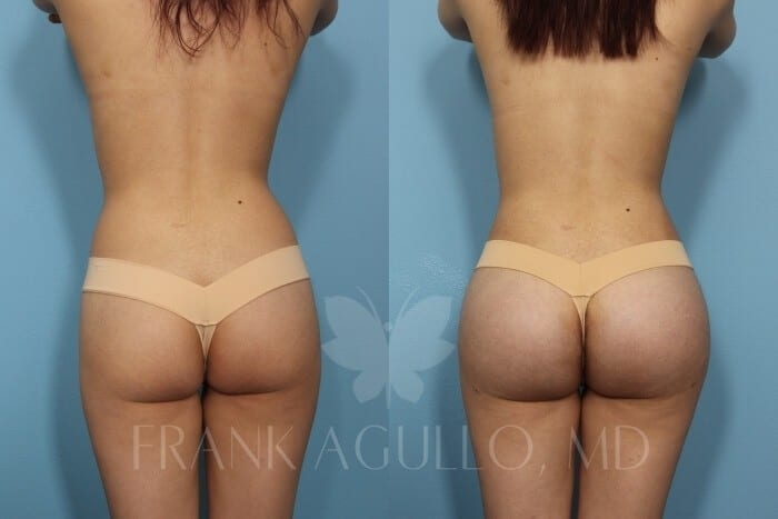 Butt Implants Before and After 3
