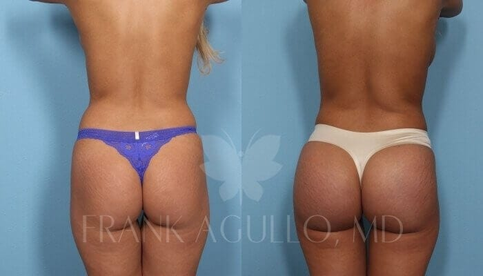 Butt Implants Before and After 10