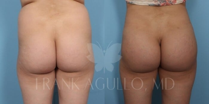 Butt Implants Before and After 4