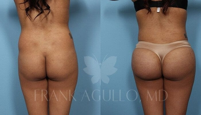 Butt Implants Before and After 5