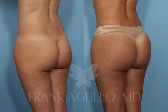 Butt Implants Before and After 6