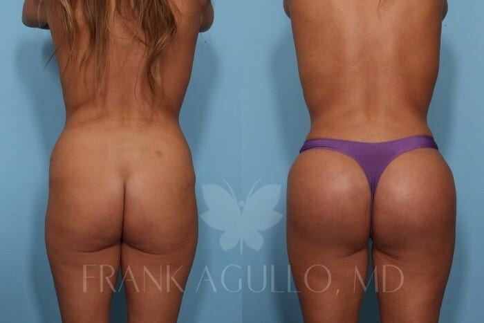 Butt Implants Before and After 7
