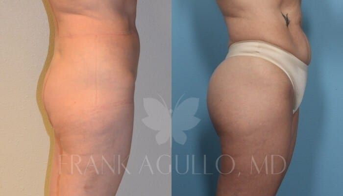 Butt Implants Before and After 12