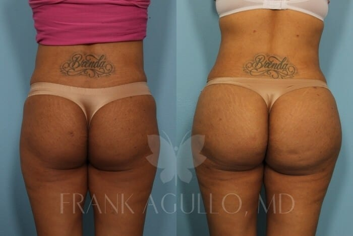 Butt Implants Before and After 13