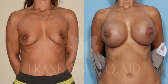 Breast Reconstruction Before and After 3