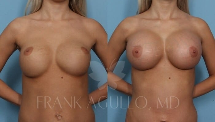 Breast Revision Before and After 13
