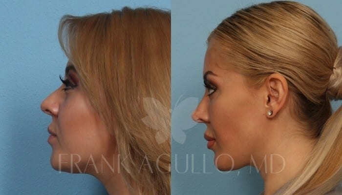 Buccal Fat Pad Removal Before and After 1